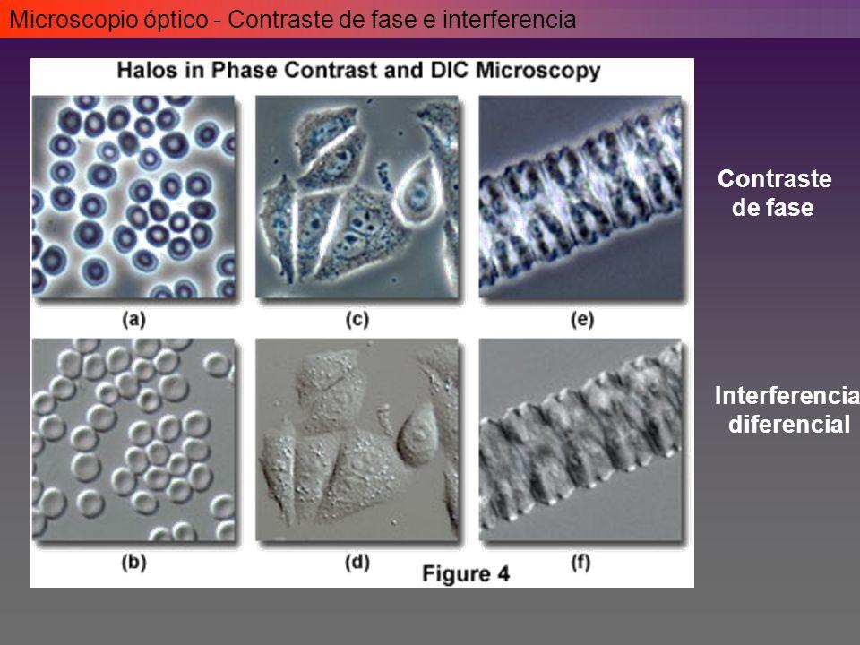 Microscopio óptico - Contraste de fase e interferencia Contraste de fase Interferencia diferencial