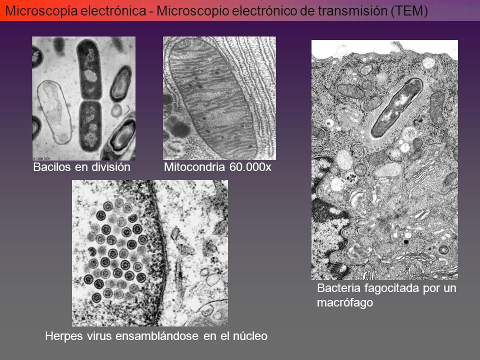 Bacilos en divisiónMitocondria 60.000x Herpes virus ensamblándose en el núcleo Bacteria fagocitada por un macrófago Microscopía electrónica - Microscopio electrónico de transmisión (TEM)