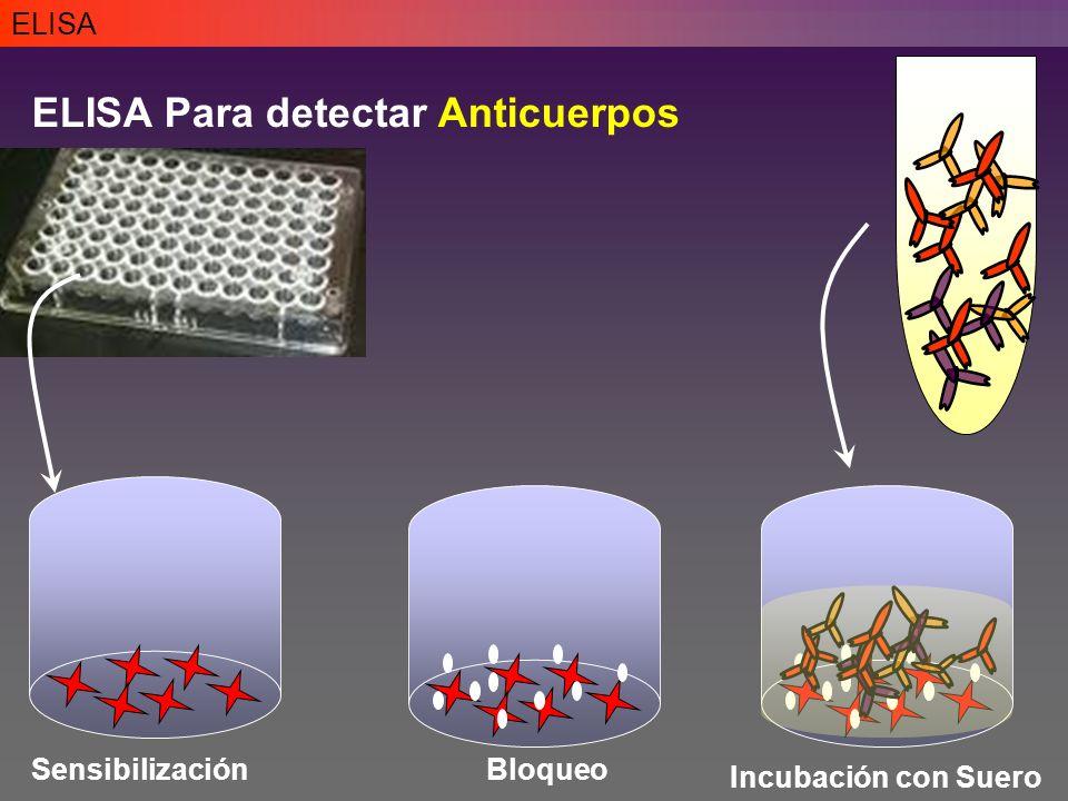 ELISA ELISA Para detectar Anticuerpos SensibilizaciónBloqueo Incubación con Suero