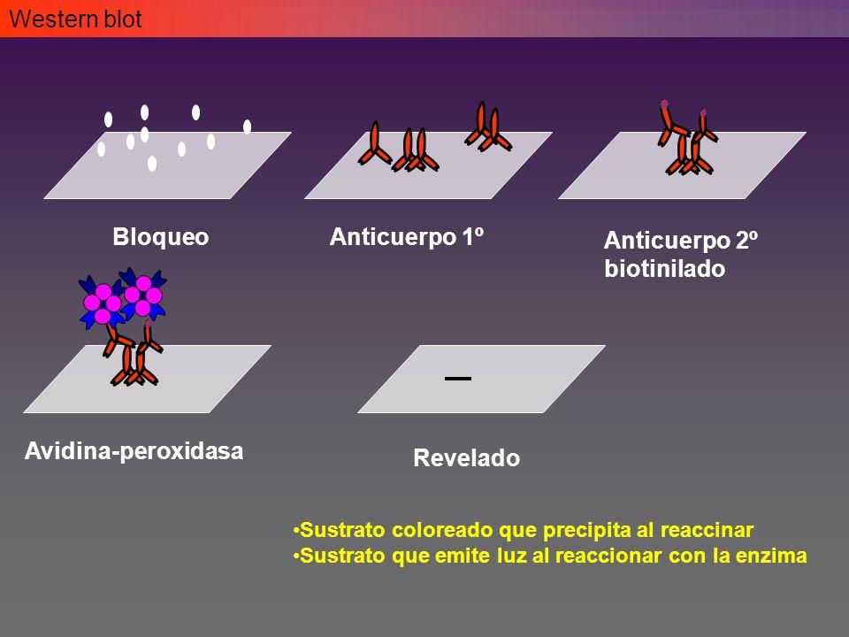 Western blot BloqueoAnticuerpo 1º Anticuerpo 2º biotinilado Avidina-peroxidasa Revelado Sustrato coloreado que precipita al reaccinar Sustrato que emite luz al reaccionar con la enzima