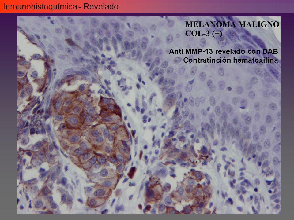 Inmunohistoquímica - Revelado Anti MMP-13 revelado con DAB Contratinción hematoxilina
