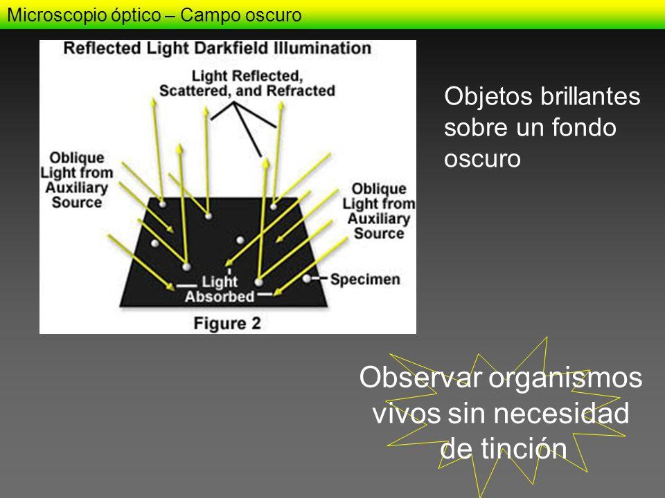 Microscopio óptico – Campo oscuro Observar organismos vivos sin necesidad de tinción Objetos brillantes sobre un fondo oscuro