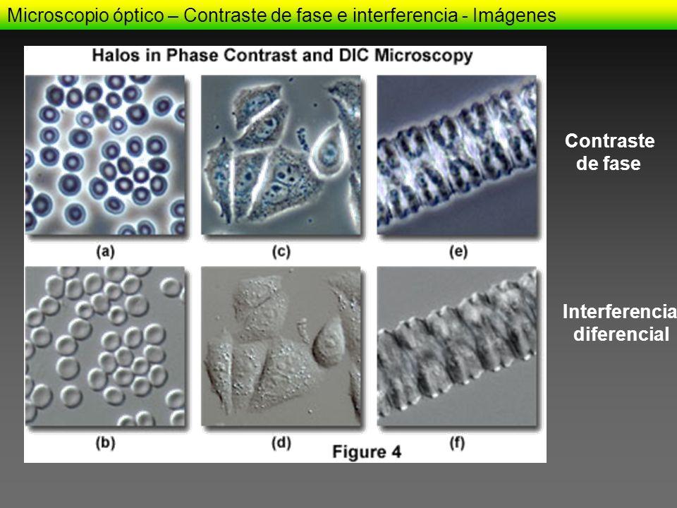 Microscopio óptico – Contraste de fase e interferencia - Imágenes Contraste de fase Interferencia diferencial