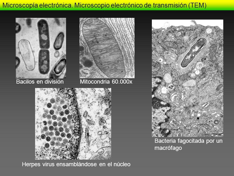 Bacilos en divisiónMitocondria 60.000x Herpes virus ensamblándose en el núcleo Bacteria fagocitada por un macrófago Microscopía electrónica. Microscop