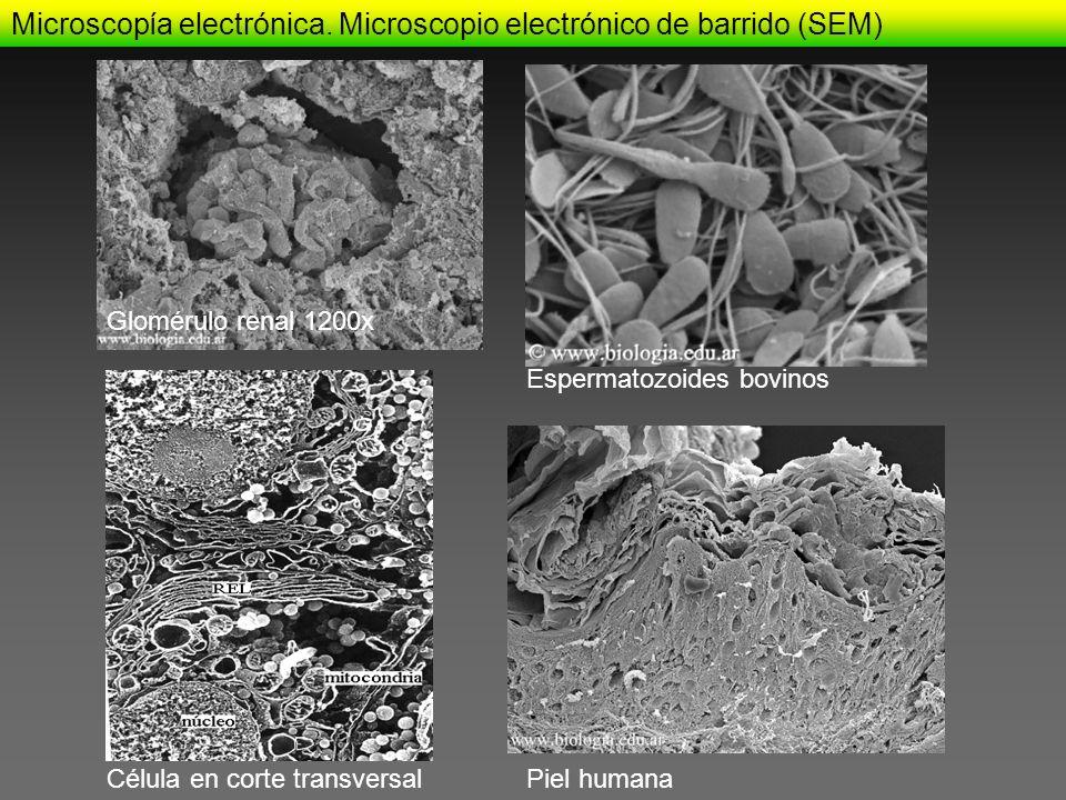 Glomérulo renal 1200x Célula en corte transversalPiel humana Espermatozoides bovinos Microscopía electrónica. Microscopio electrónico de barrido (SEM)
