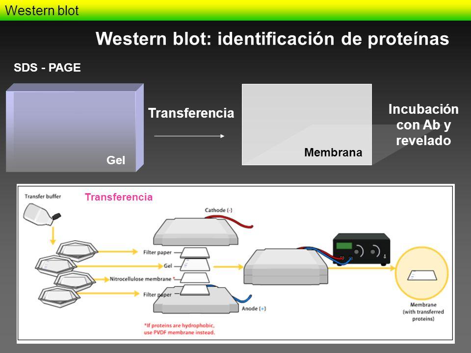 Western blot Western blot: identificación de proteínas Transferencia SDS - PAGE Gel Membrana Incubación con Ab y revelado Transferencia
