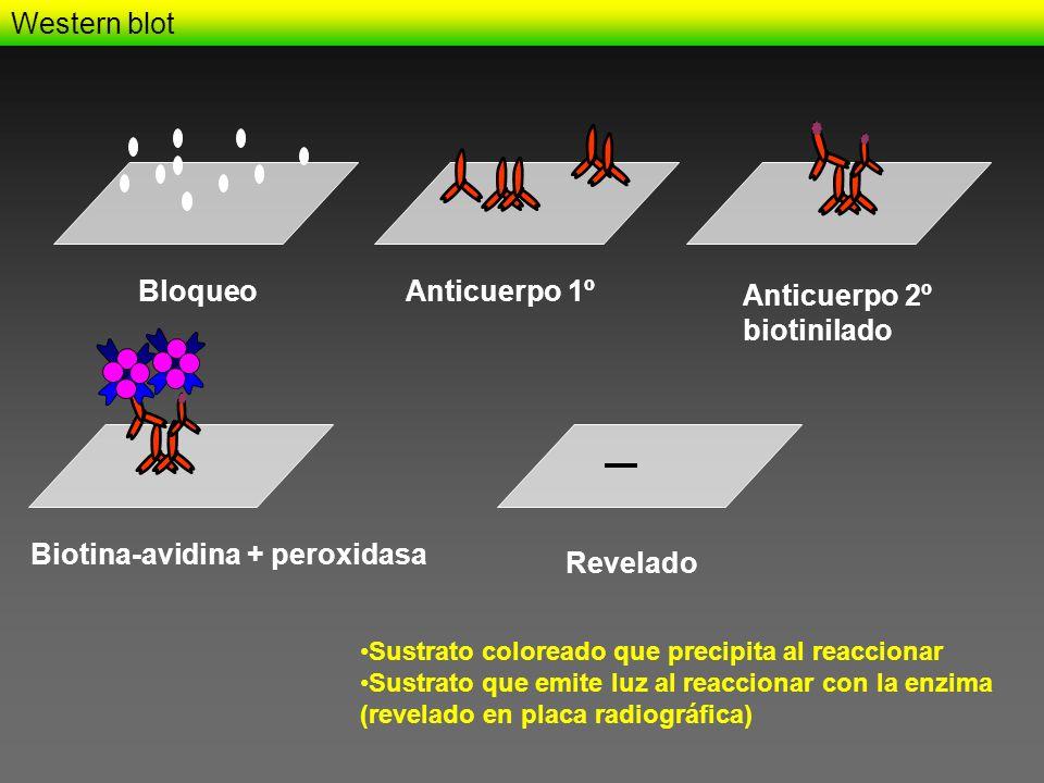 Western blot BloqueoAnticuerpo 1º Anticuerpo 2º biotinilado Biotina-avidina + peroxidasa Revelado Sustrato coloreado que precipita al reaccionar Sustr