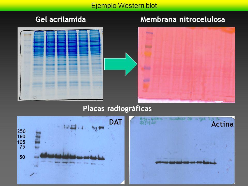 Ejemplo Western blot Membrana nitrocelulosa 50 Actina DAT 75 105 160 250 Placas radiográficas Gel acrilamida