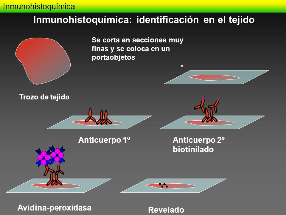 Inmunohistoquímica Trozo de tejido Se corta en secciones muy finas y se coloca en un portaobjetos Anticuerpo 1ºAnticuerpo 2º biotinilado Avidina-perox
