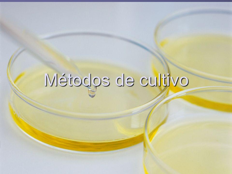 Importancia del cultivo de microorganismos: Obtención de cultivos puros.Obtención de cultivos puros.