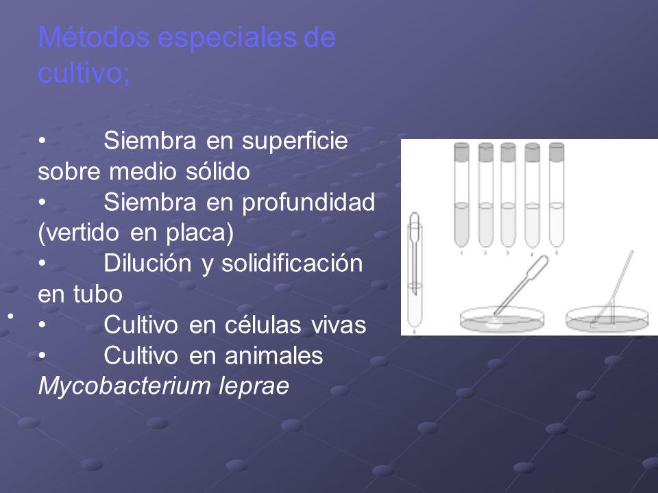 Métodos especiales de cultivo; Siembra en superficie sobre medio sólido Siembra en profundidad (vertido en placa) Dilución y solidificación en tubo Cu