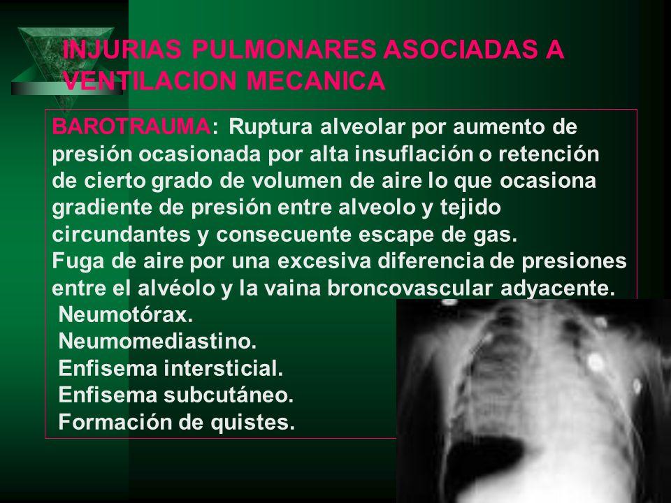 BAROTRAUMA: Ruptura alveolar por aumento de presión ocasionada por alta insuflación o retención de cierto grado de volumen de aire lo que ocasiona gra