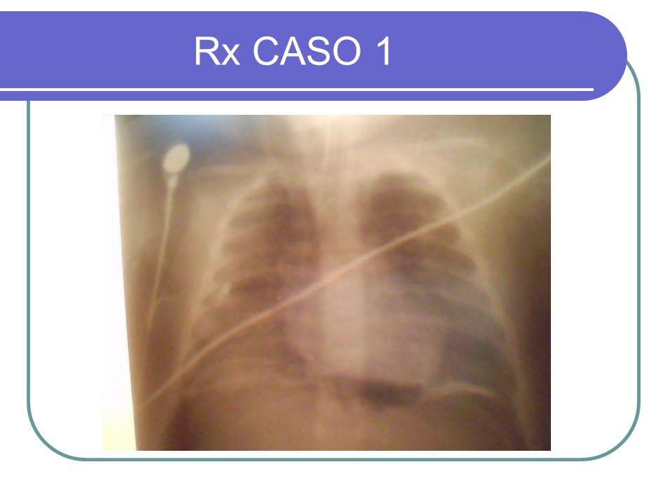 Rx CASO 1