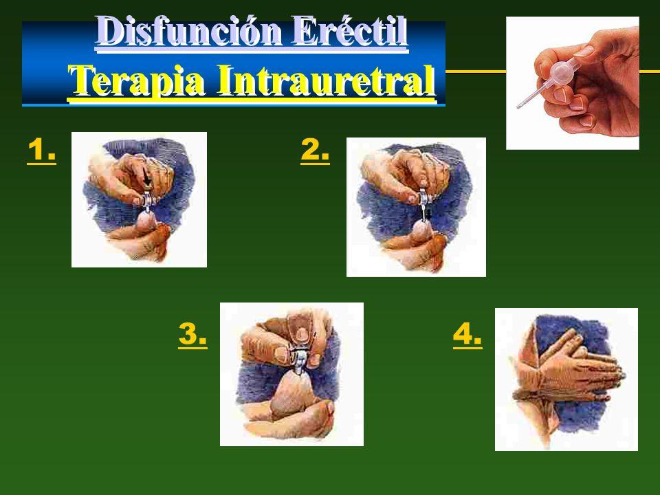 Disfunción Eréctil Terapia Intrauretral Disfunción Eréctil Terapia Intrauretral 1.2. 3.4.