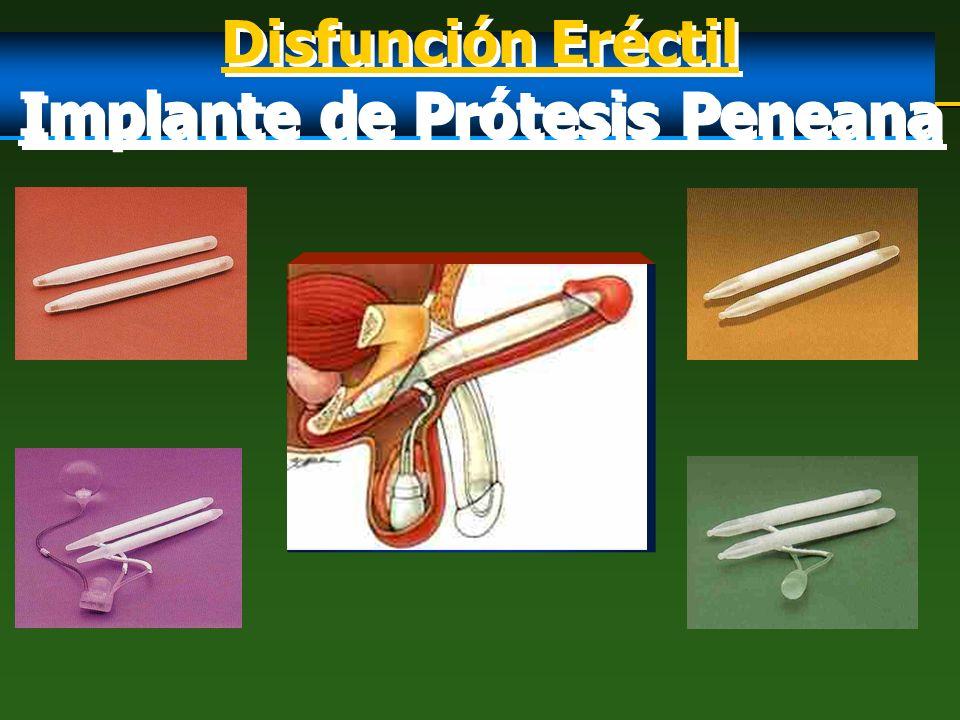 Disfunción Eréctil Implante de Prótesis Peneana Disfunción Eréctil Implante de Prótesis Peneana