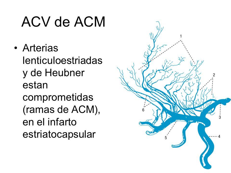 ACV de ACM Arterias lenticuloestriadas y de Heubner estan comprometidas (ramas de ACM), en el infarto estriatocapsular