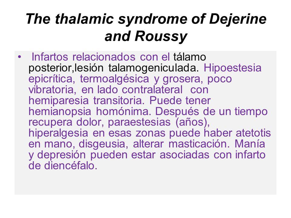 The thalamic syndrome of Dejerine and Roussy Infartos relacionados con el tálamo posterior,lesión talamogeniculada. Hipoestesia epicrítica, termoalgés