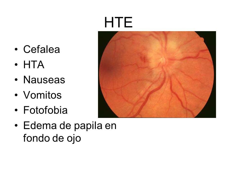 HTE Cefalea HTA Nauseas Vomitos Fotofobia Edema de papila en fondo de ojo