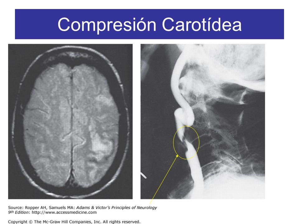 Compresión Carotídea
