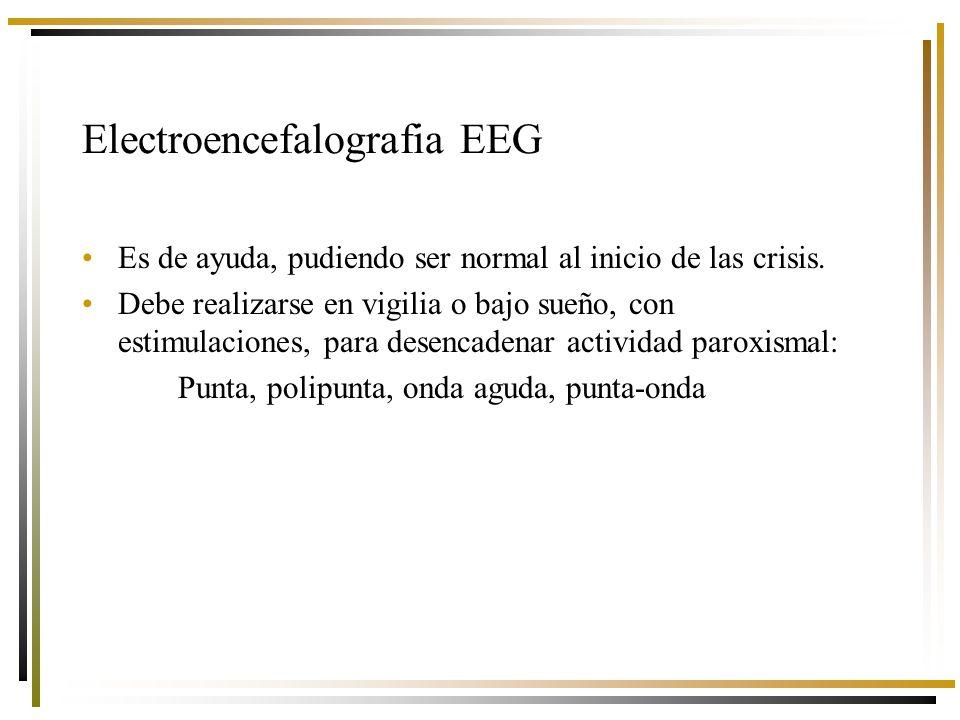 Electroencefalografia EEG Es de ayuda, pudiendo ser normal al inicio de las crisis.