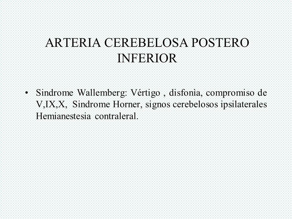 ARTERIA CEREBELOSA POSTERO INFERIOR Sindrome Wallemberg: Vértigo, disfonìa, compromiso de V,IX,X, Sindrome Horner, signos cerebelosos ipsilaterales He