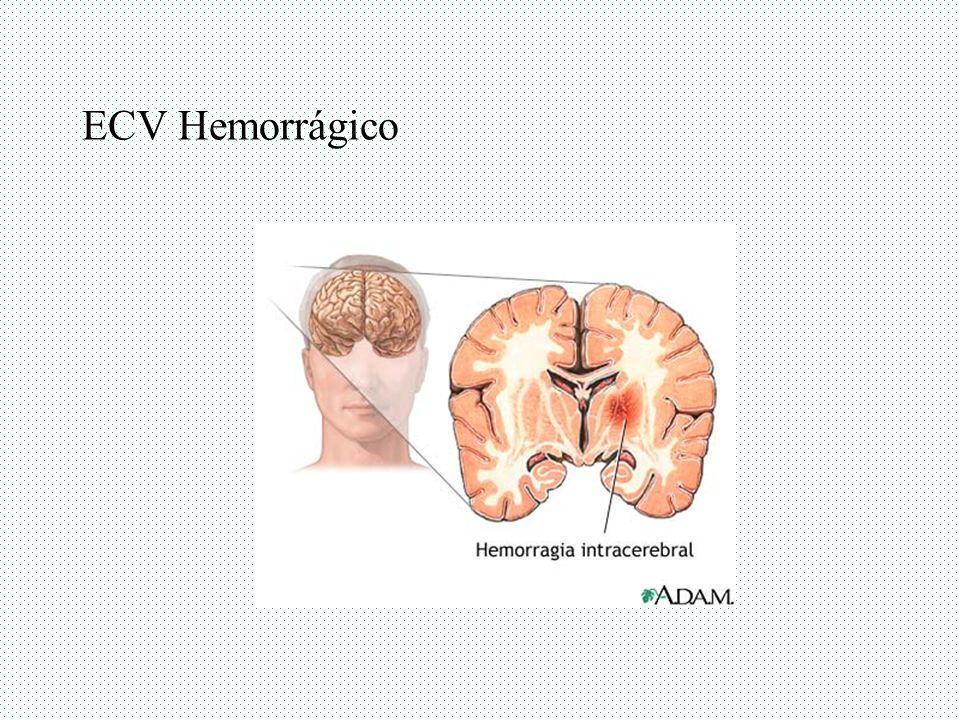 ECV Hemorrágico