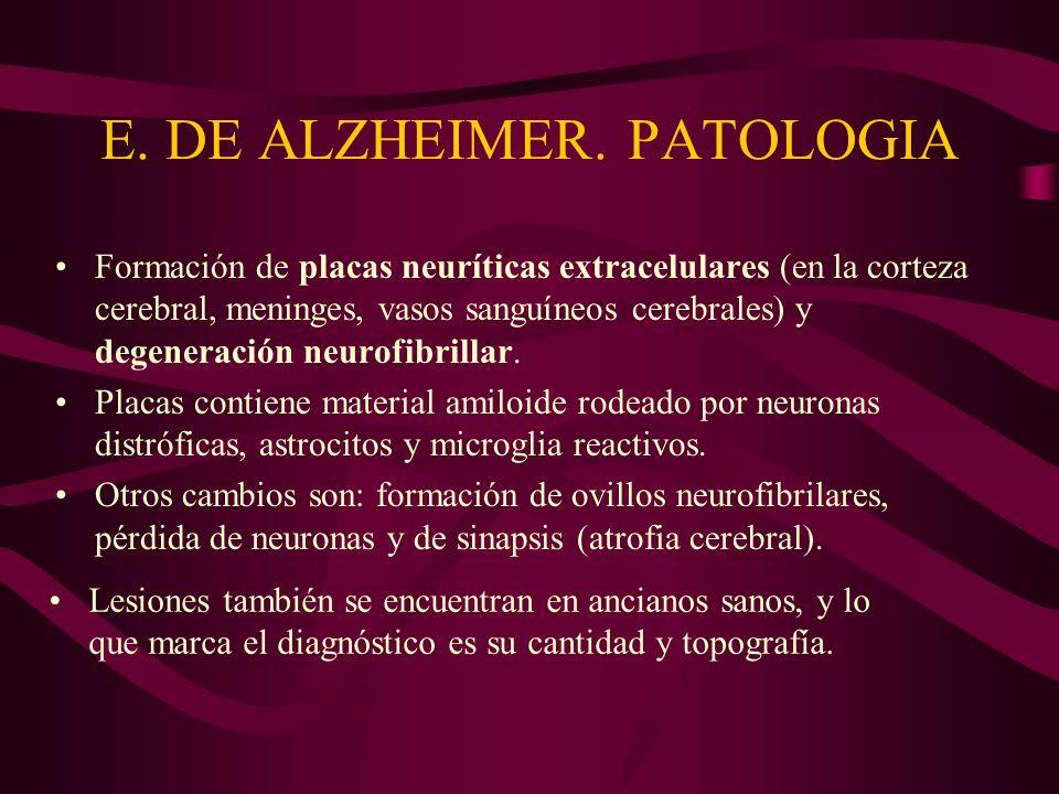 E. DE ALZHEIMER. PATOLOGIA Formación de placas neuríticas extracelulares (en la corteza cerebral, meninges, vasos sanguíneos cerebrales) y degeneració