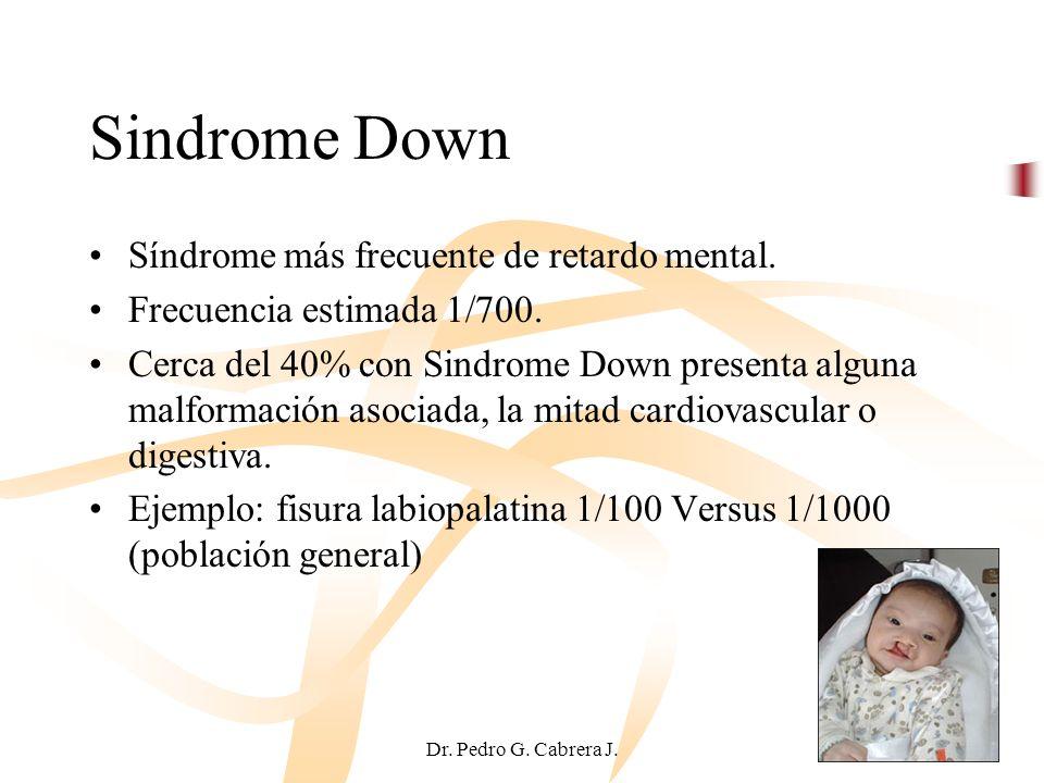 Dr. Pedro G. Cabrera J. Sindrome Down Síndrome más frecuente de retardo mental. Frecuencia estimada 1/700. Cerca del 40% con Sindrome Down presenta al
