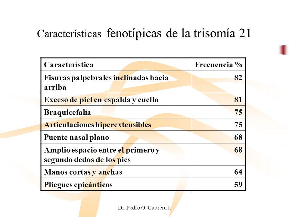 Dr. Pedro G. Cabrera J. Características fenotípicas de la trisomía 21 CaracterísticaFrecuencia % Fisuras palpebrales inclinadas hacia arriba 82 Exceso
