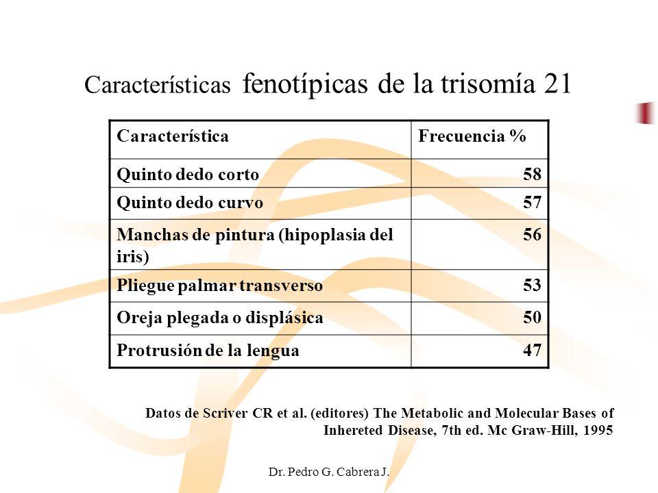Dr. Pedro G. Cabrera J. Características fenotípicas de la trisomía 21 CaracterísticaFrecuencia % Quinto dedo corto58 Quinto dedo curvo57 Manchas de pi