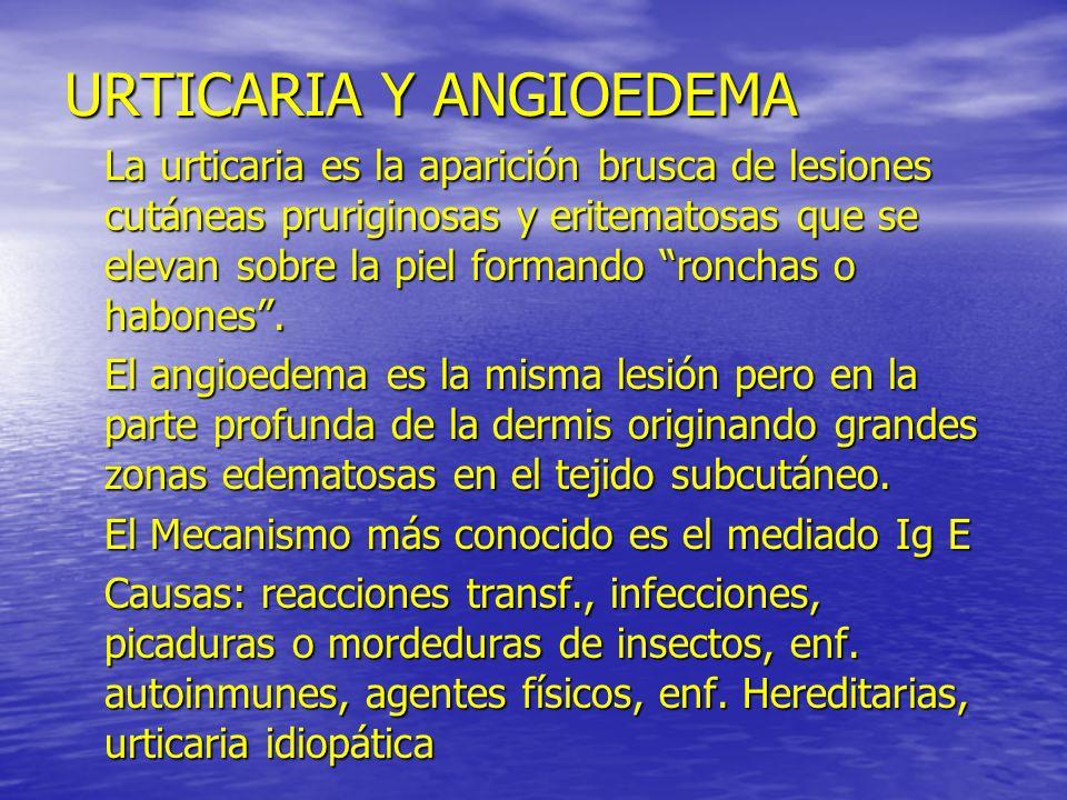 URTICARIA Y ANGIOEDEMA La urticaria es la aparición brusca de lesiones cutáneas pruriginosas y eritematosas que se elevan sobre la piel formando ronch