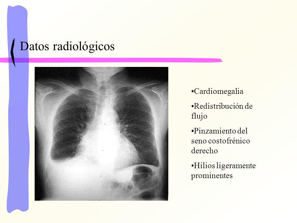 Datos radiológicos Cardiomegalia Redistribución de flujo Pinzamiento del seno costofrénico derecho Hilios ligeramente prominentes