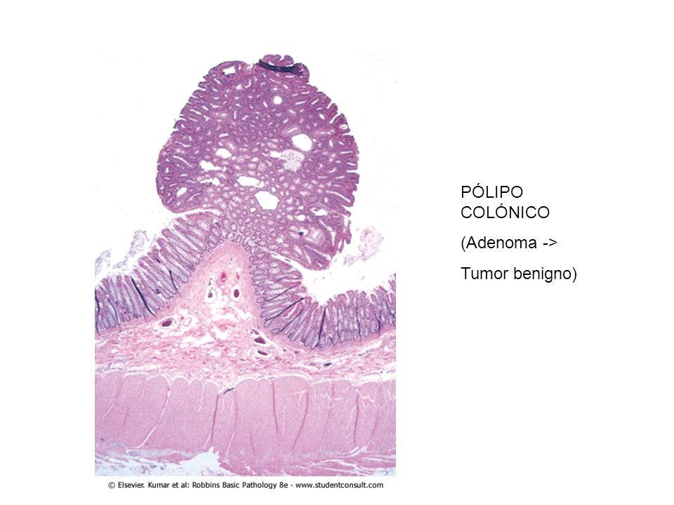 PÓLIPO COLÓNICO (Adenoma -> Tumor benigno)