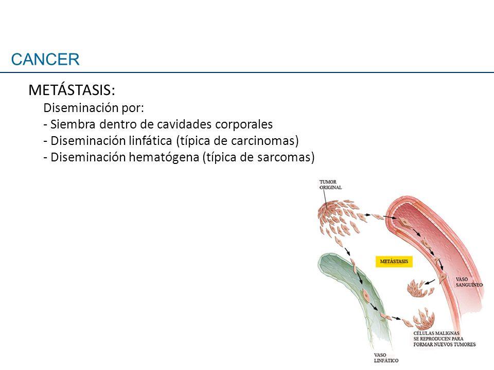 METÁSTASIS: Diseminación por: - Siembra dentro de cavidades corporales - Diseminación linfática (típica de carcinomas) - Diseminación hematógena (típi