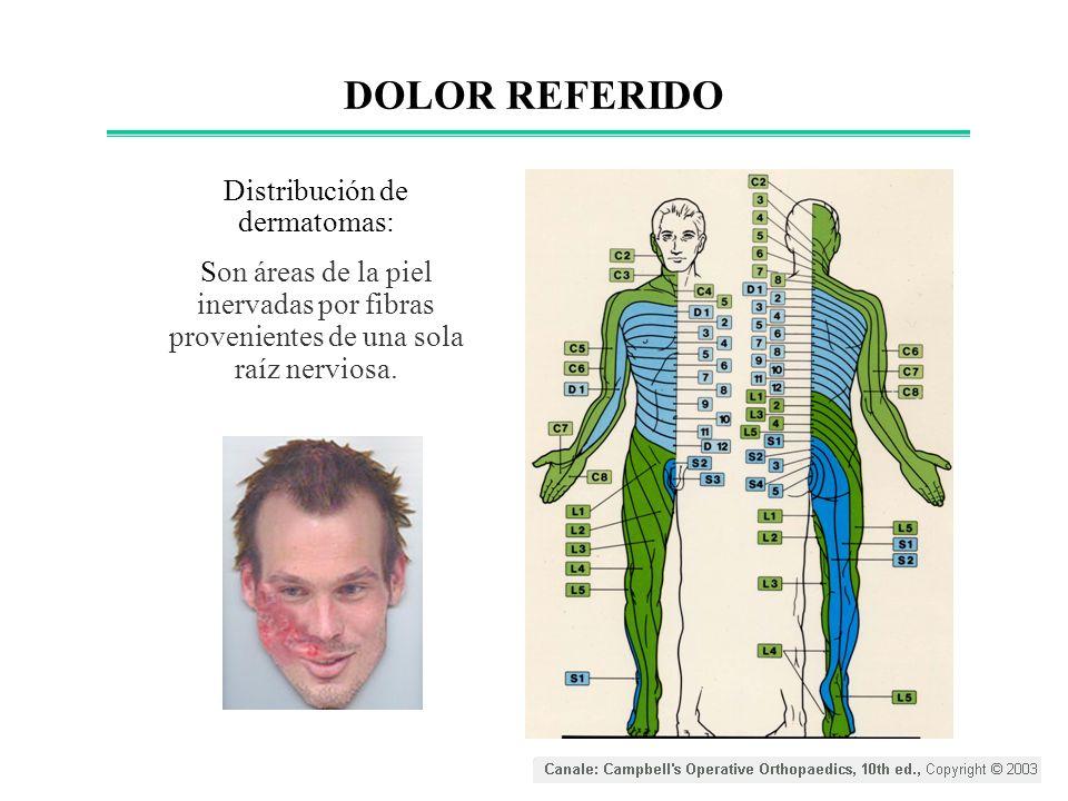 Distribución de dermatomas: Son áreas de la piel inervadas por fibras provenientes de una sola raíz nerviosa. DOLOR REFERIDO