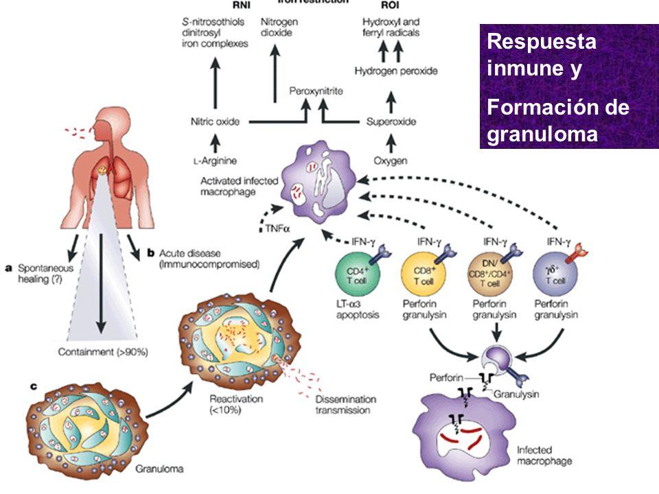 Formación de Granuloma Activación de linfocitos.Atracción y fusión de macrófagos.