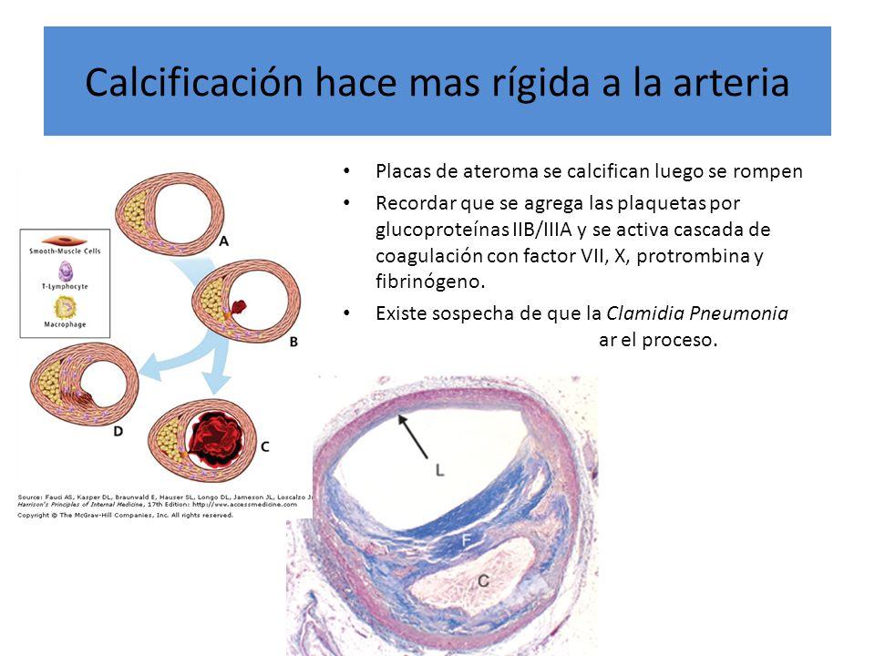 Calcificación hace mas rígida a la arteria Placas de ateroma se calcifican luego se rompen Recordar que se agrega las plaquetas por glucoproteínas IIB