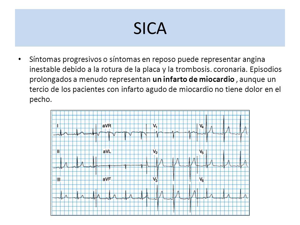 Síntomas progresivos o síntomas en reposo puede representar angina inestable debido a la rotura de la placa y la trombosis. coronaria. Episodios prolo
