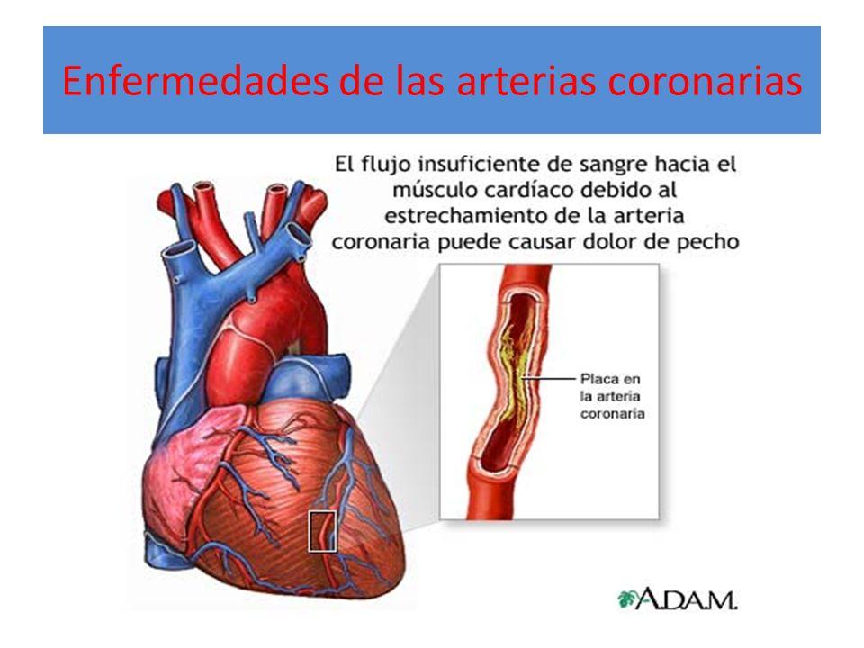 Enfermedades de las arterias coronarias
