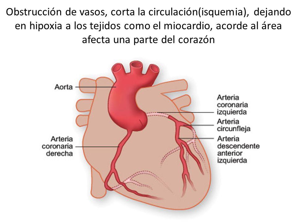 Obstrucción de vasos, corta la circulación(isquemia), dejando en hipoxia a los tejidos como el miocardio, acorde al área afecta una parte del corazón