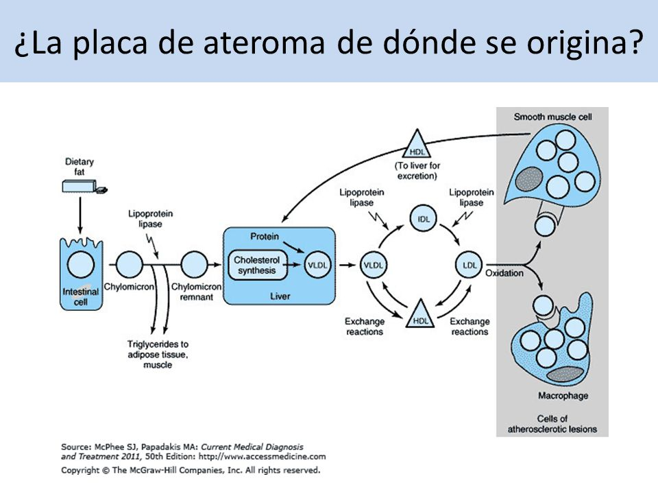 Placa de ateroma 1.Macrófagos fagocitan colesterol.
