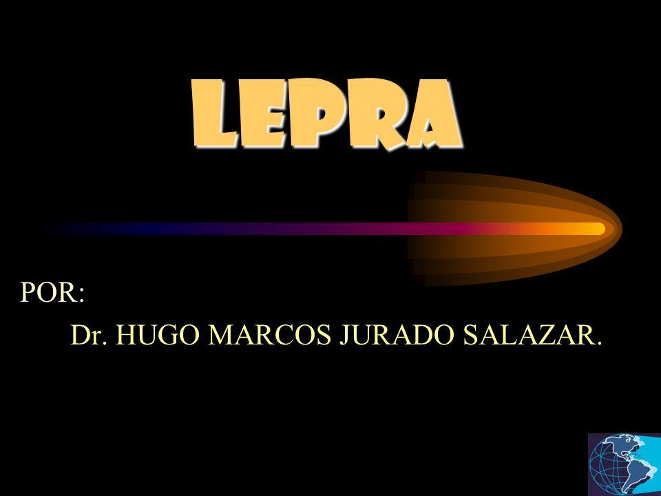 LEPRA POR: Dr. HUGO MARCOS JURADO SALAZAR.