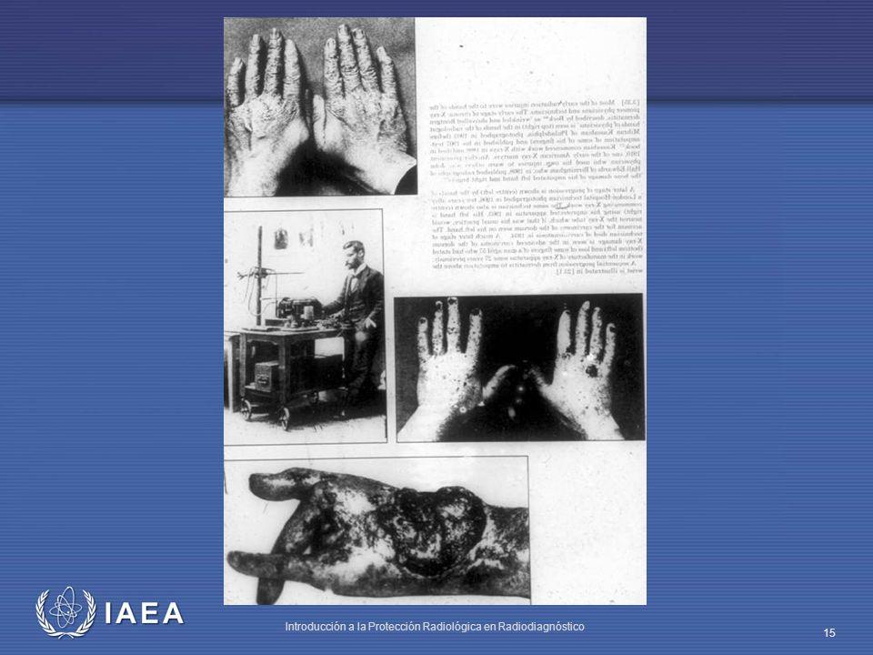 IAEA Introducción a la Protección Radiológica en Radiodiagnóstico 15