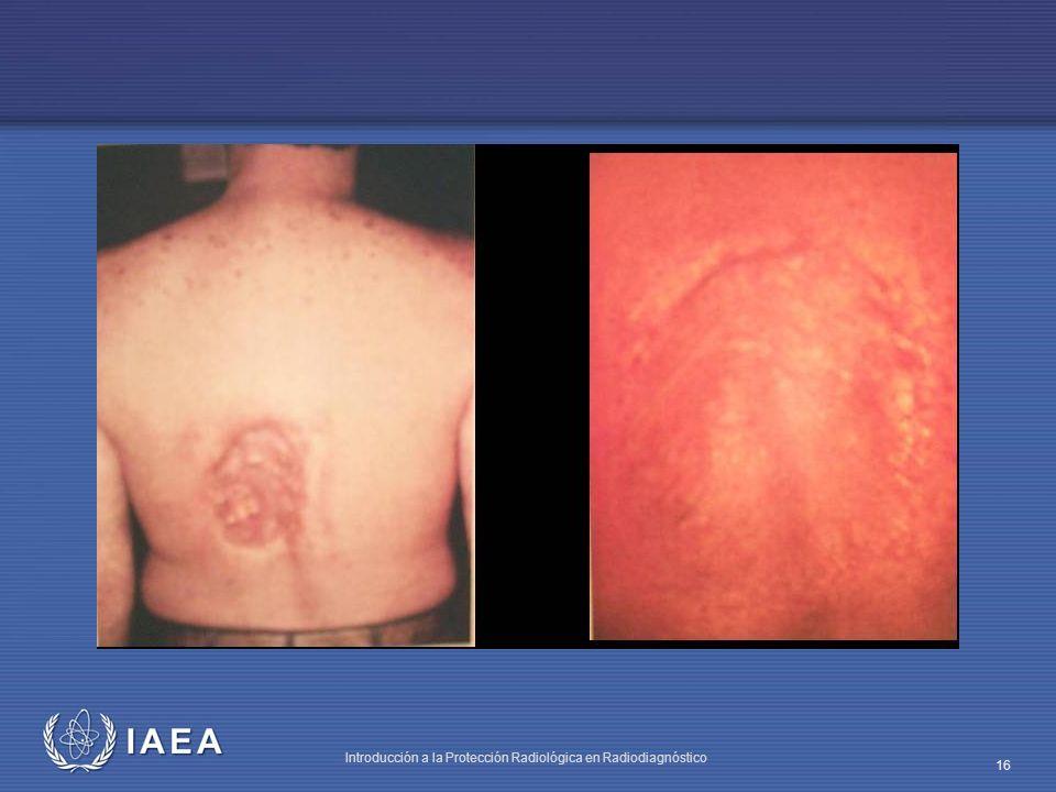 IAEA Introducción a la Protección Radiológica en Radiodiagnóstico 16