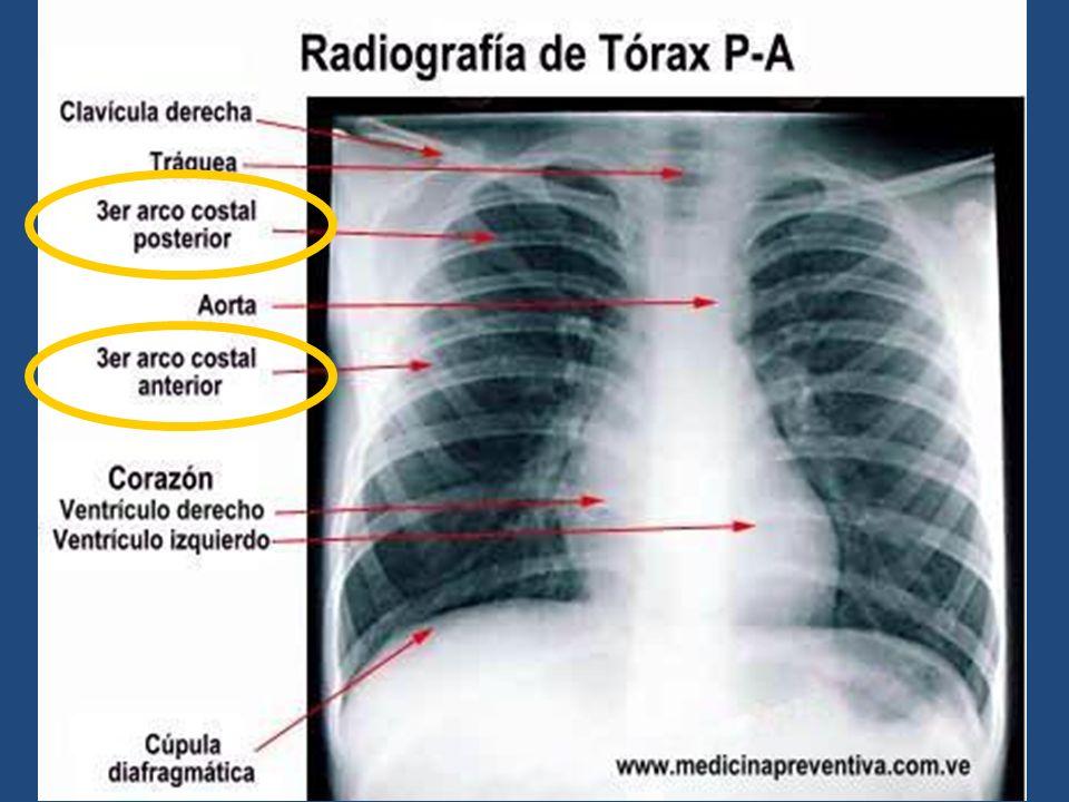 Único Radiografía De Tórax Vista Lateral Anatomía Ilustración ...