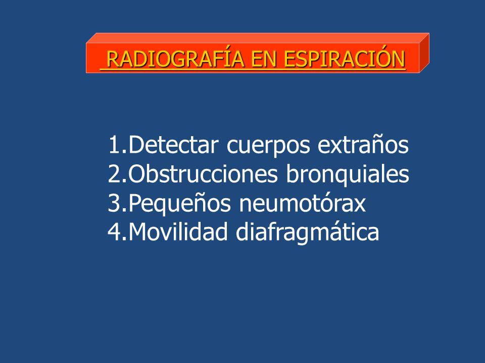 1.Detectar cuerpos extraños 2.Obstrucciones bronquiales 3.Pequeños neumotórax 4.Movilidad diafragmática RADIOGRAFÍA EN ESPIRACIÓN RADIOGRAFÍA EN ESPIRACIÓN