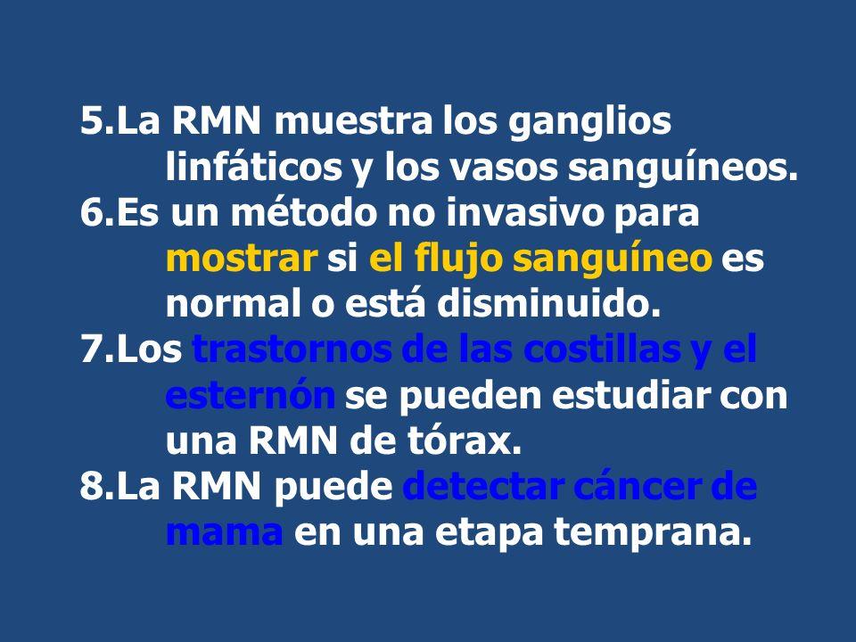 5.La RMN muestra los ganglios linfáticos y los vasos sanguíneos. 6.Es un método no invasivo para mostrar si el flujo sanguíneo es normal o está dismin