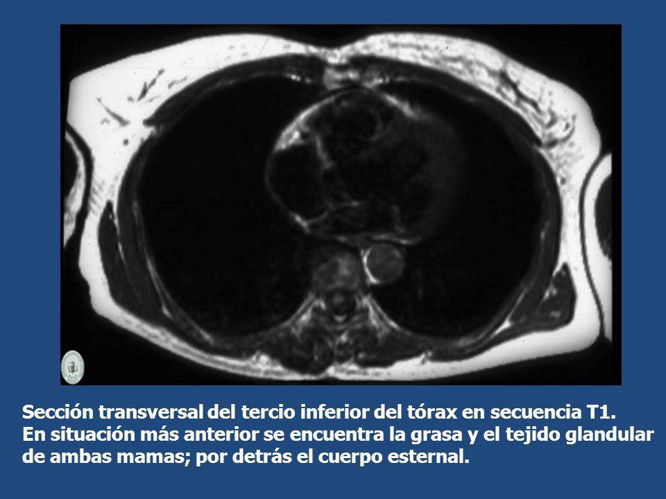 Sección transversal del tercio inferior del tórax en secuencia T1. En situación más anterior se encuentra la grasa y el tejido glandular de ambas mama