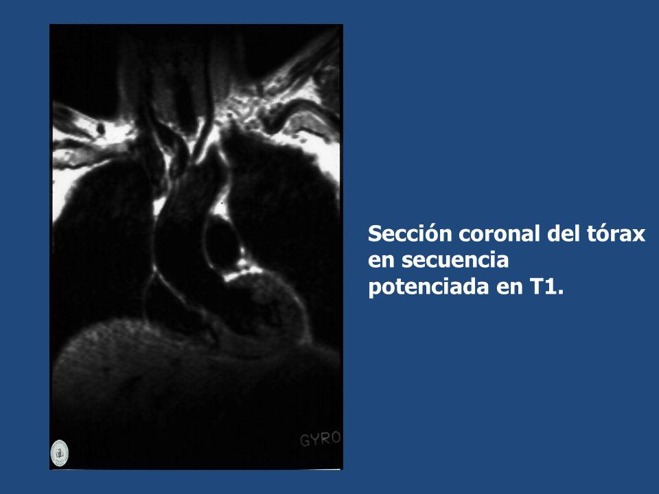 Sección coronal del tórax en secuencia potenciada en T1.