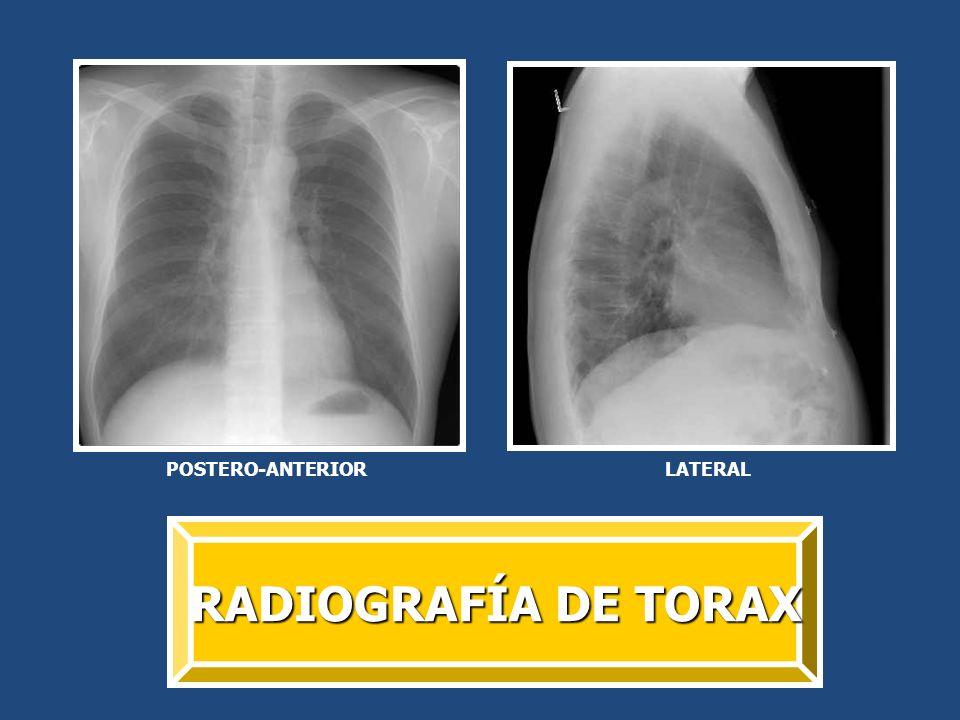 APLICACIONES 1.Para estudiar los pulmones, el corazón y la pared torácica.